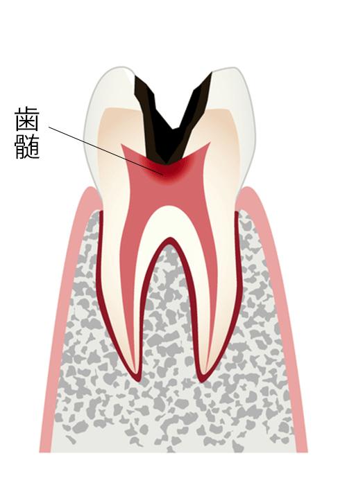 神経まで進行したむし歯